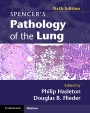 Spencers Pathology of the Lung 2 Part Set with DVDs - ISBN 9780521509954