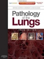 Pathology of the Lungs: Expert Consult: Online and Print, 3 Rev ed. - ISBN 9780702033698